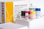 Inwestycja w produkcję zestawów immunoenzymatycznych
